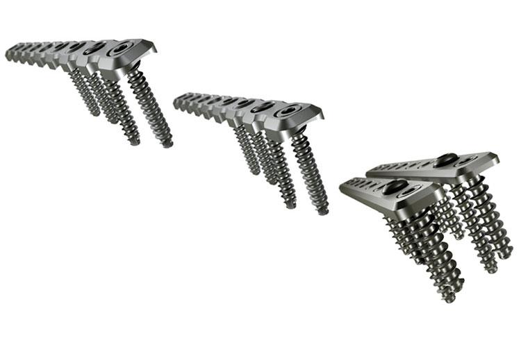 SLS - Straight Locking Plates System